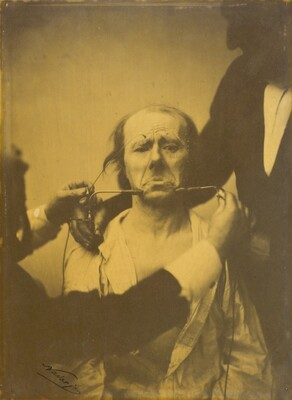 Pain and despair, plate 45 from the album, The Mechanism of Human Facial Expression