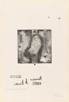 Knee [1/2 uncorrected stone in black]