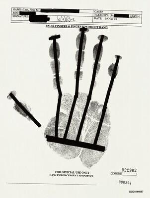PALM, FINGERS & FINGERTIPS (RIGHT HAND) 000394