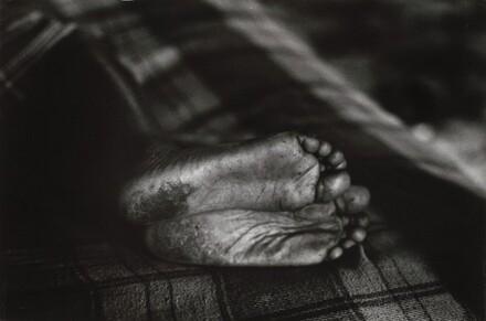 Ellen's Feet