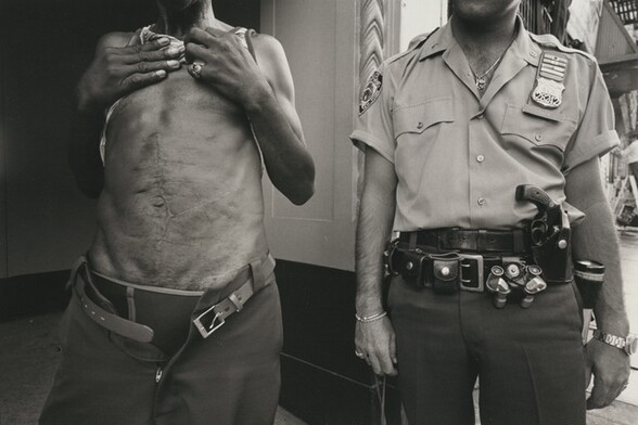 A known drug dealer shows the knife wounds he had received in pursuit of his street trading. In this district the streets are so dangerous that the police officer carries two guns and a switch-blade knife. The small opera glasses are used to watch drug dealers from a distance, New York City