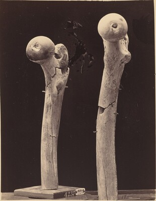 Specimens of Gunshot Fractures of the Femur