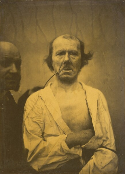 A relaxed expression (left); Disgust (right)