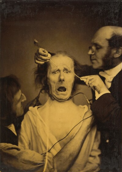 Guillaume-Benjamin-Amant Duchenne (de Boulogne), Terror mixed with pain, torture, 1854-1856, printed 1862