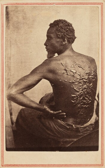 McPherson & Oliver, The Scourged Back, c. 1863