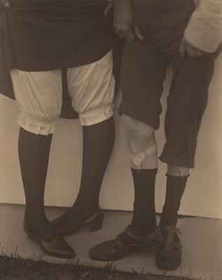 Legs (Elizabeth and Donald Davidson)